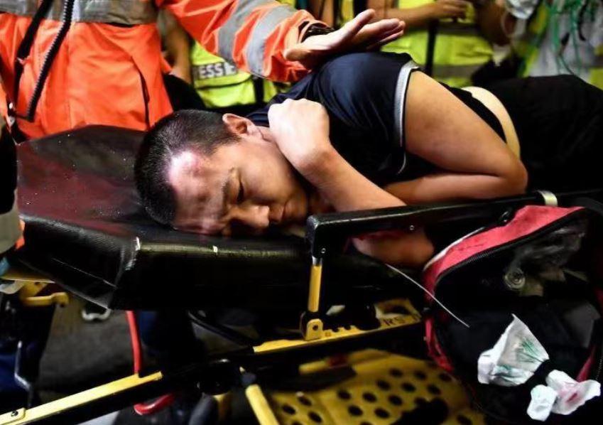 Chinese journalists association denounces severe violence against reporter