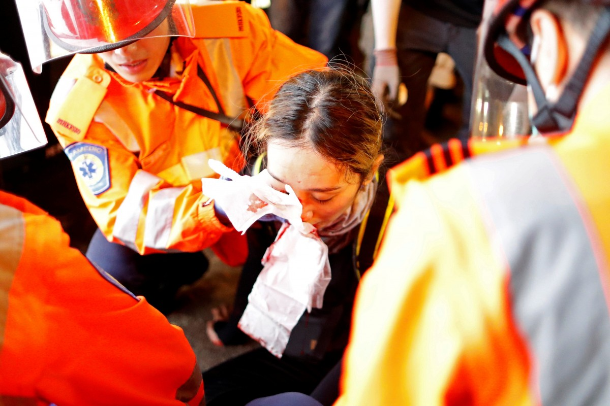 Facts Tell: Are HK police behind a protester's eye injury?