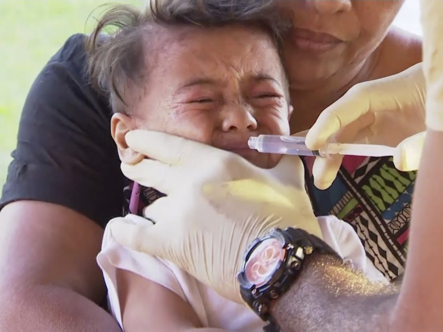 Death toll of measles climbs to 48 in Samoa
