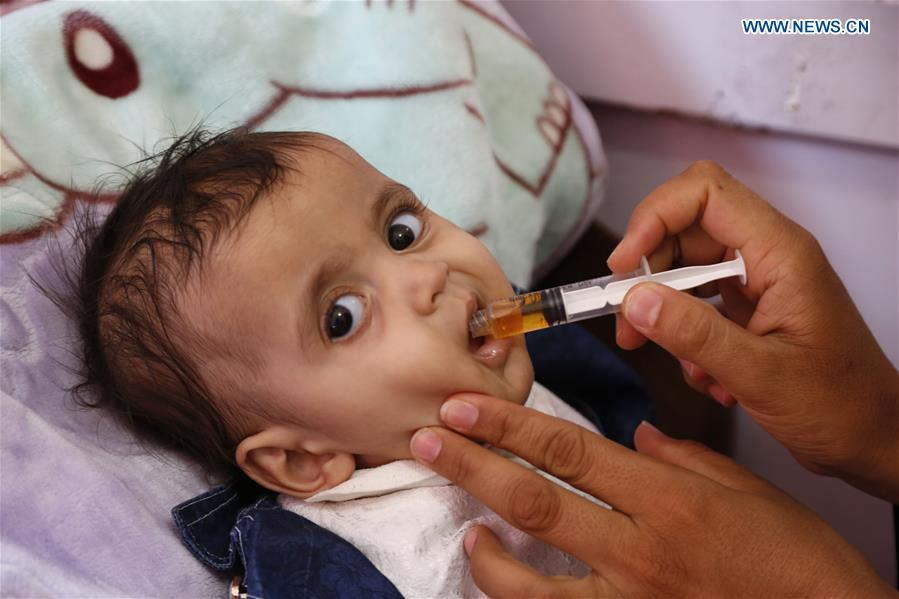 Children accept treatment for malnutrition in Sanaa, Yemen