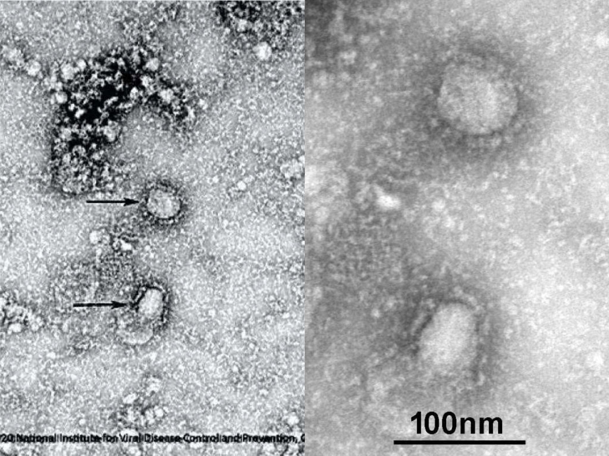 Chinese researchers publish early findings about novel coronavirus