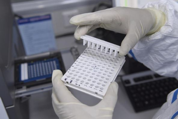 Chinese researchers develop new rapid testing kits for COVID-19