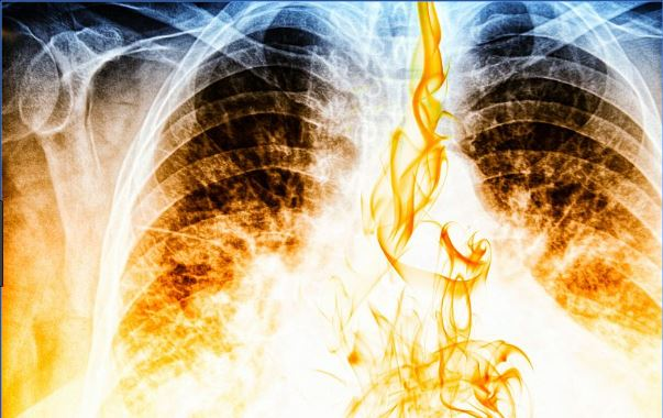 Study shows how oxygen transfer altered in diseased lung tissue