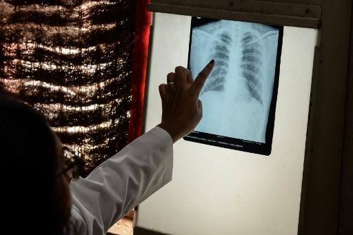 COVID-19 lockdown risks 1.4 mn extra TB deaths: study