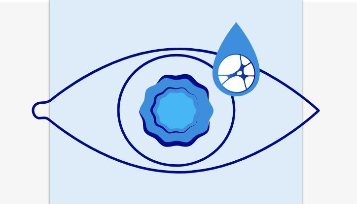 New eye therapy approved in China