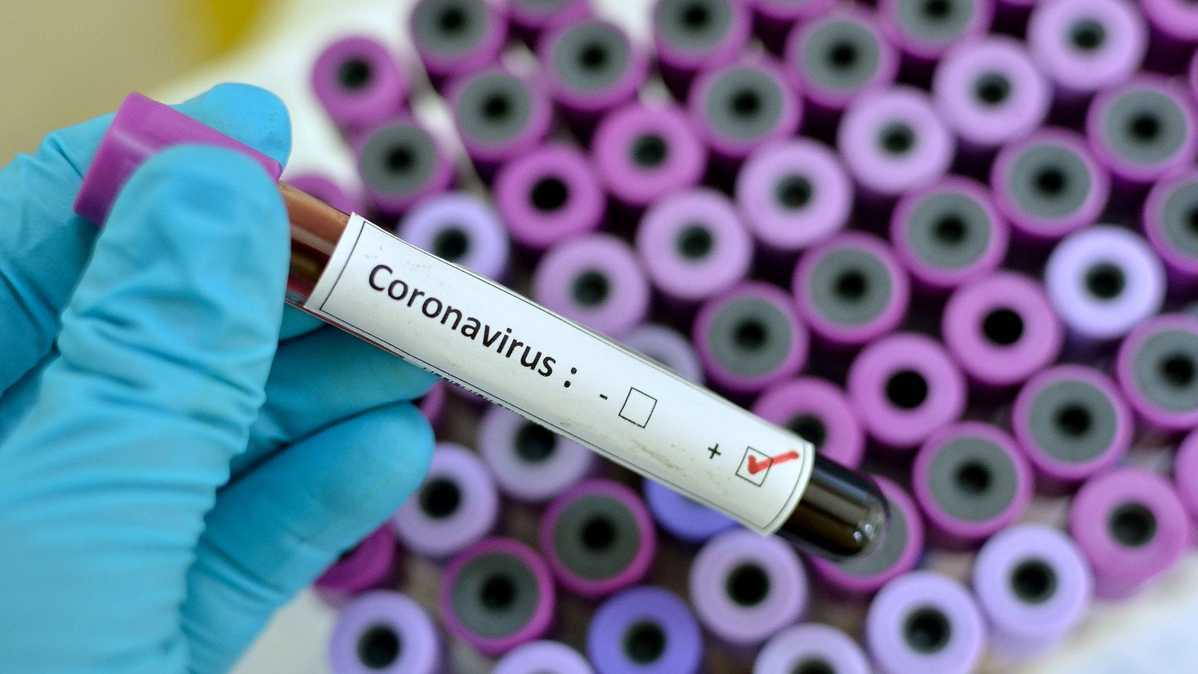 COVID-19 vaccines face distribution issues