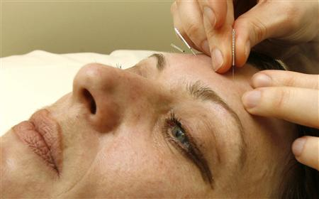 Chinese acupuncture gains wide popularity in Tunisia