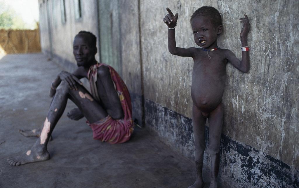 World Bank, UN launch mechanism to prevent famine