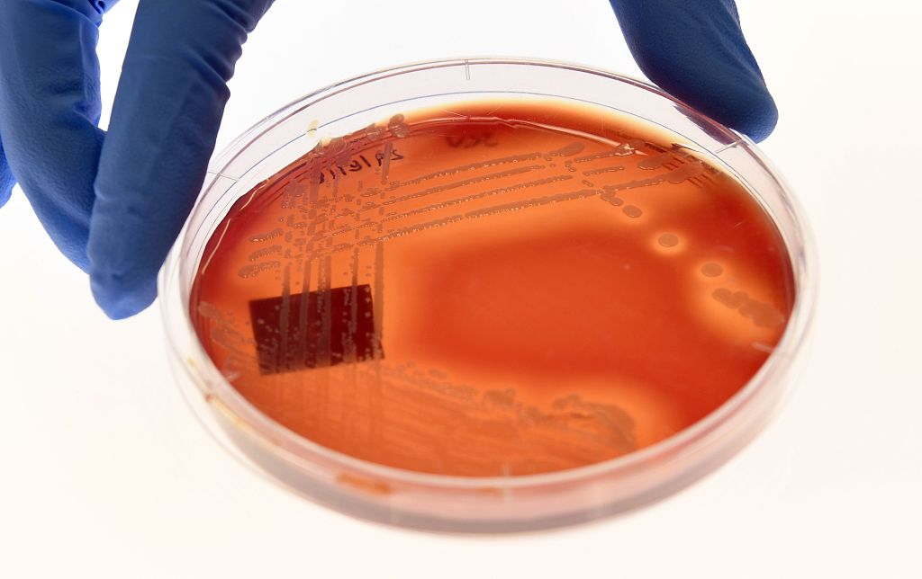 Superbugs killed 33,000 Europeans in 2015: study