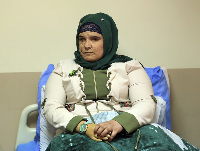 Iraqi war victims turn to social media to find medical help