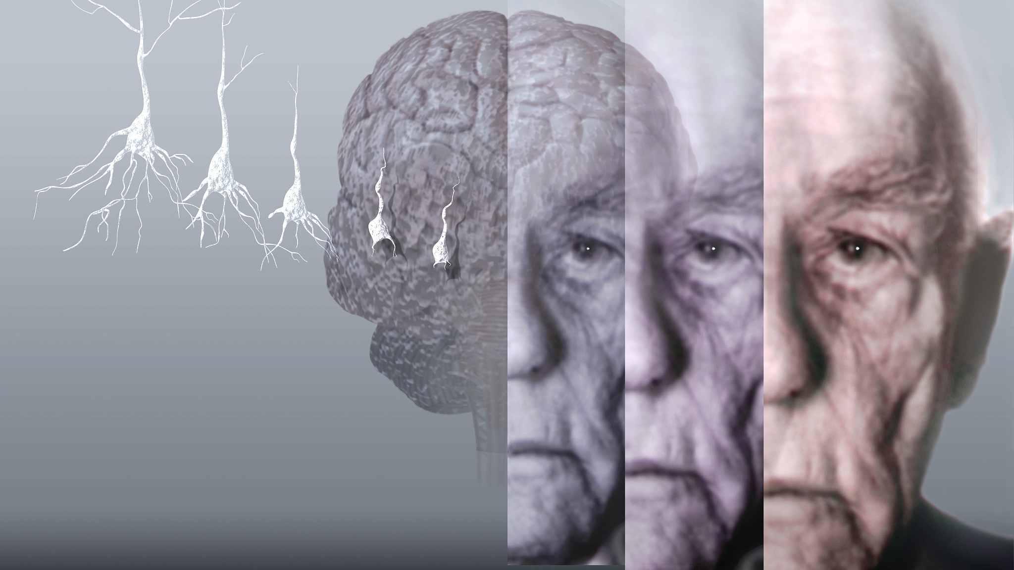 MRI scan may help predict dementia: study