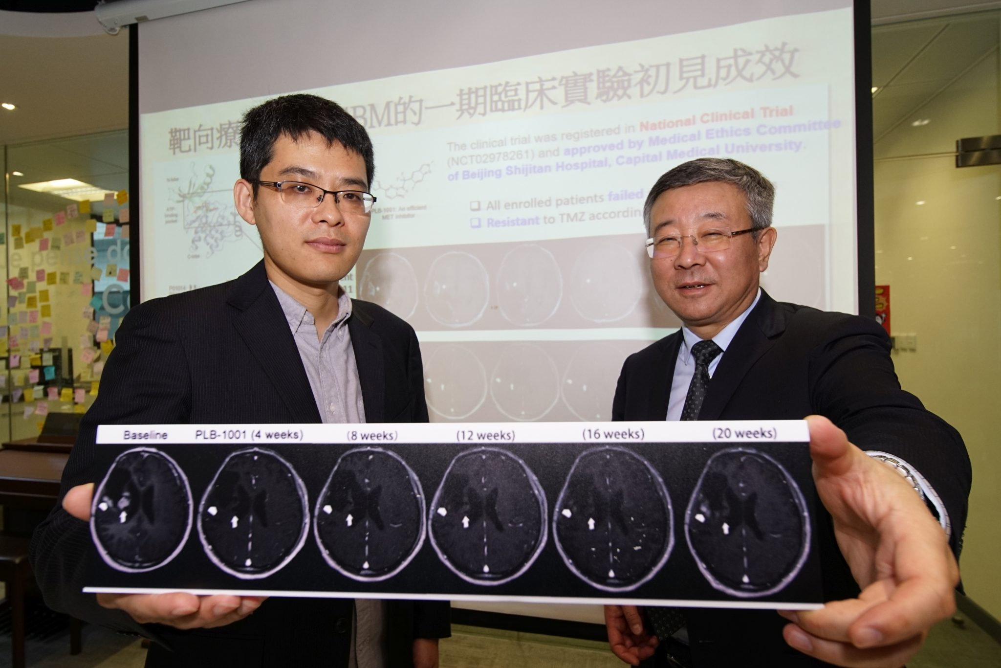 Hong Kong scientists discover deadly brain cancer mutation route