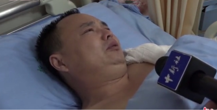 Chinese father donates skin to save severely burned daughter