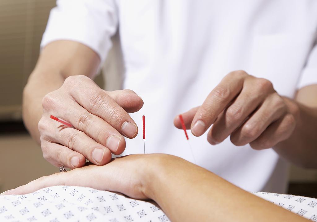 Acupuncture edges toward US mainstream