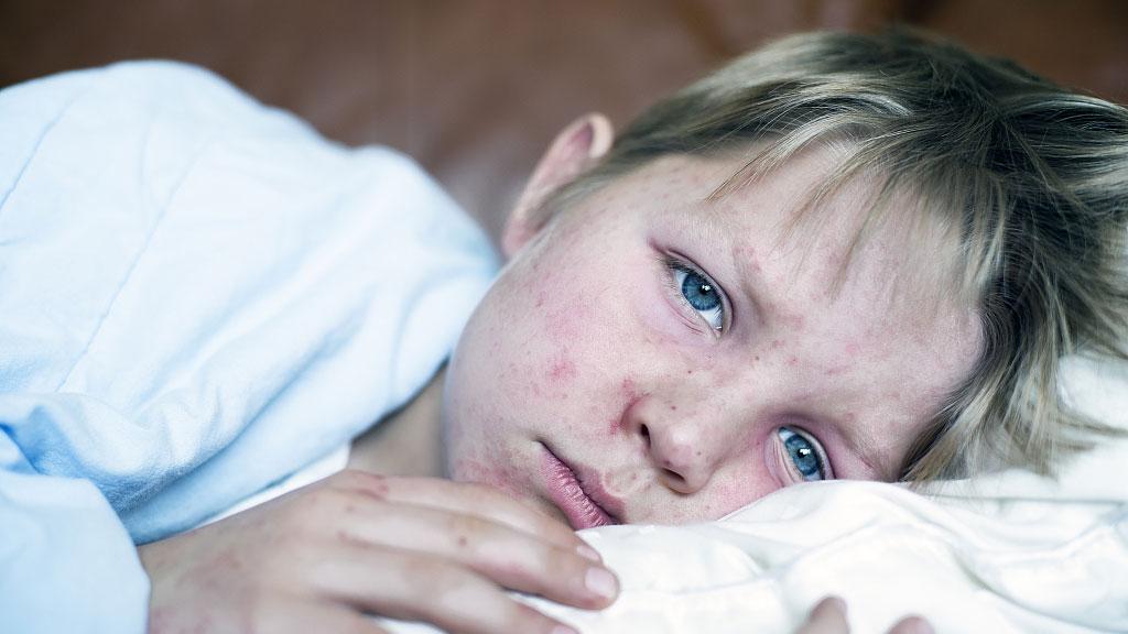 Global outbreak of measles brings debate about anti-vax movement
