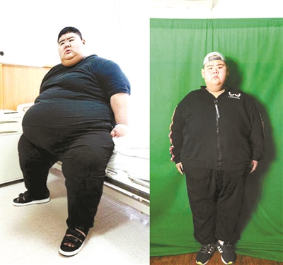 'Fattest man in China' loses 140kg
