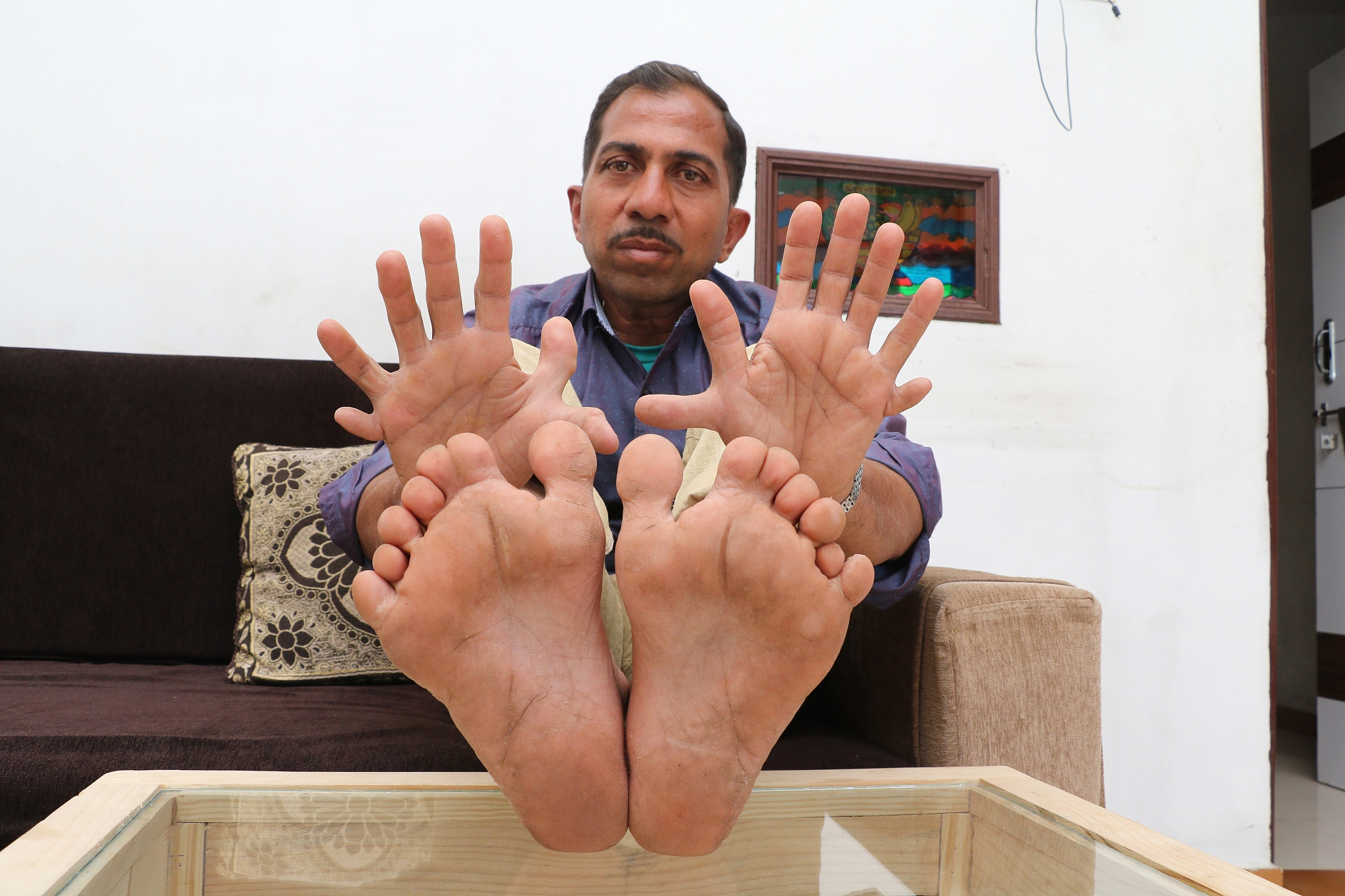 Indian man shows off world's most fingers and toes