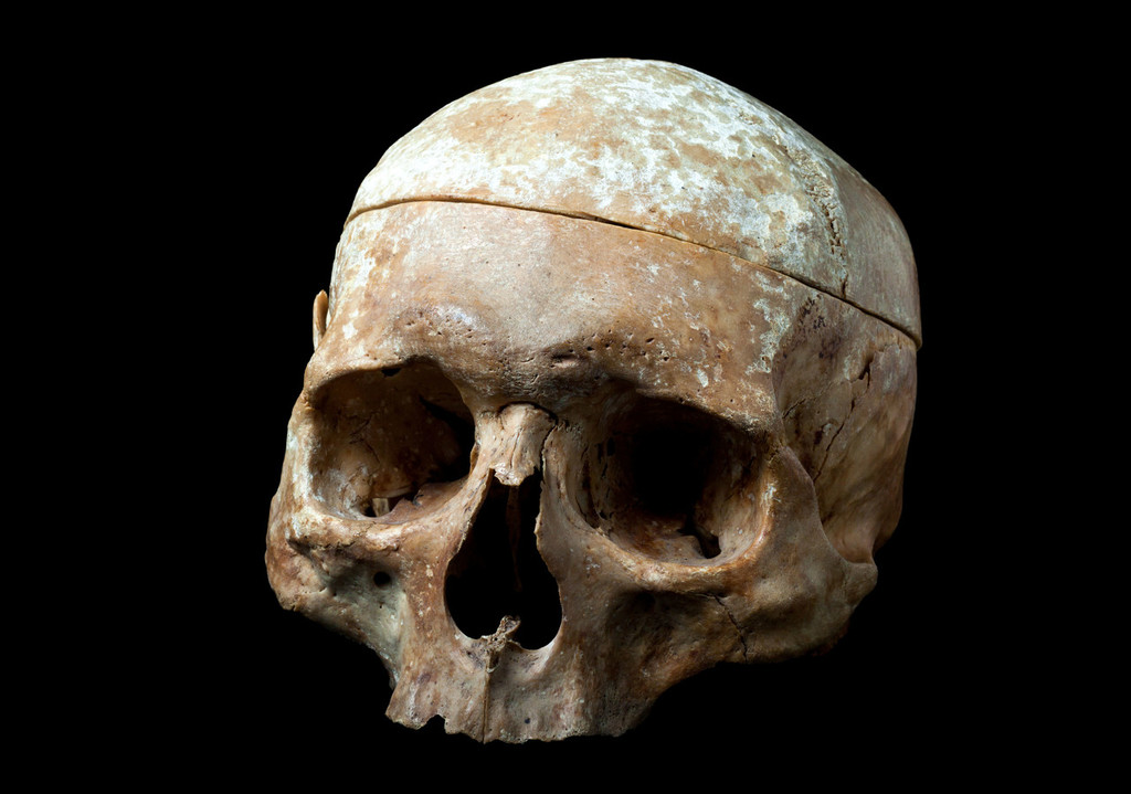 Unearthed skeletons reveal evidence of early skull reshaping